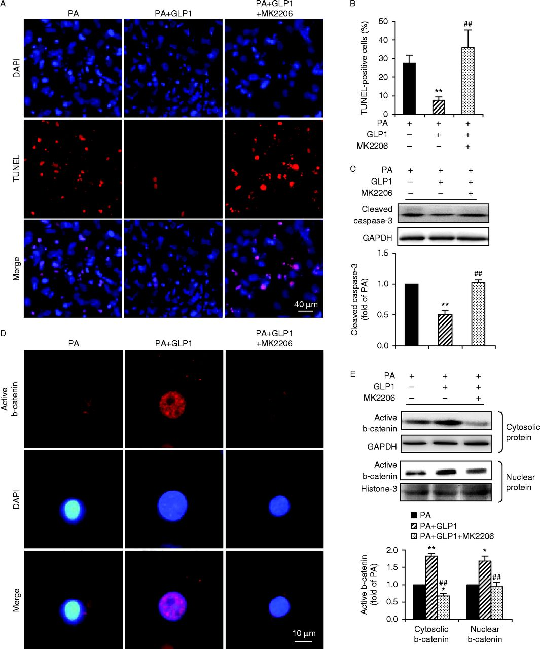 GLP1 protects cardiomyocytes from palmitate-induced