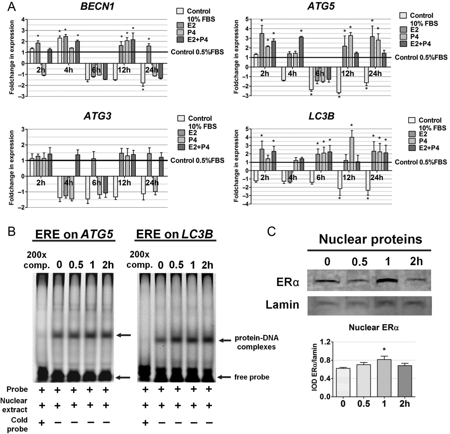 Mechanisms of autophagy induction by sex steroids in bovine mammary