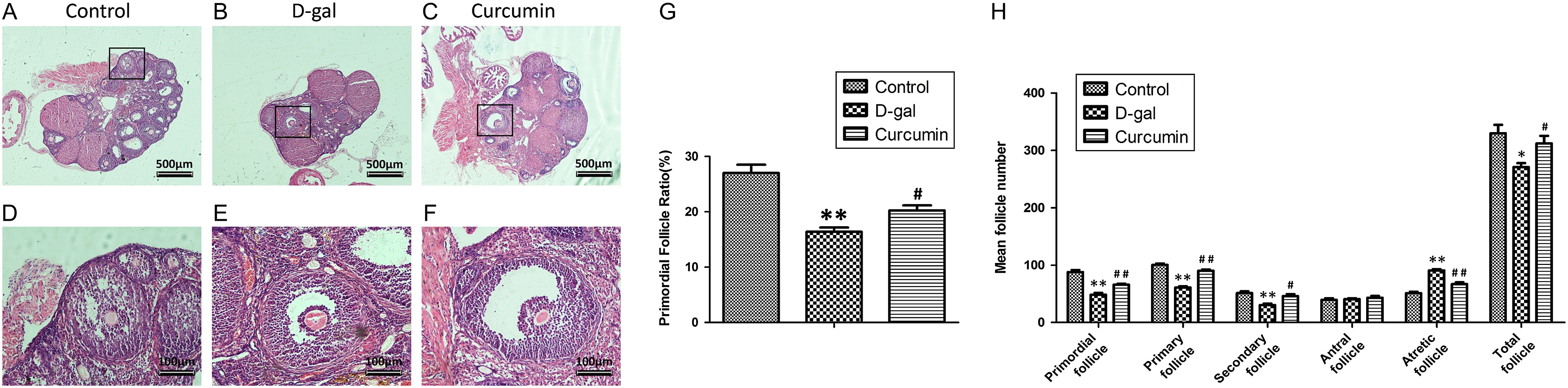 Curcumin exerts a protective effect against premature